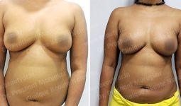 Pre Post Surgery Photos - Clinique Beaute Naturelle