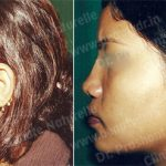 Pre Post Surgery Photos - Clinique Beaute Naturelle